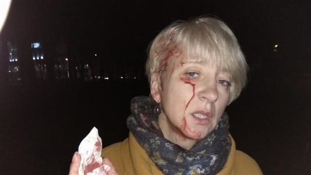 У прокуратуры есть три версии нападения на судью Гольник